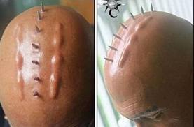 skin implants on the skull